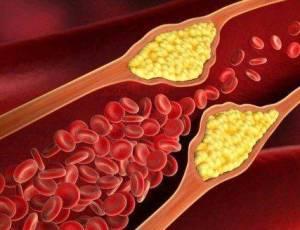 نقِّ الأوعية الدموية لكي تعيش حتى 120 عاماً. أنا عمري الآن 120 عاماً وضغط دمي 120/80.